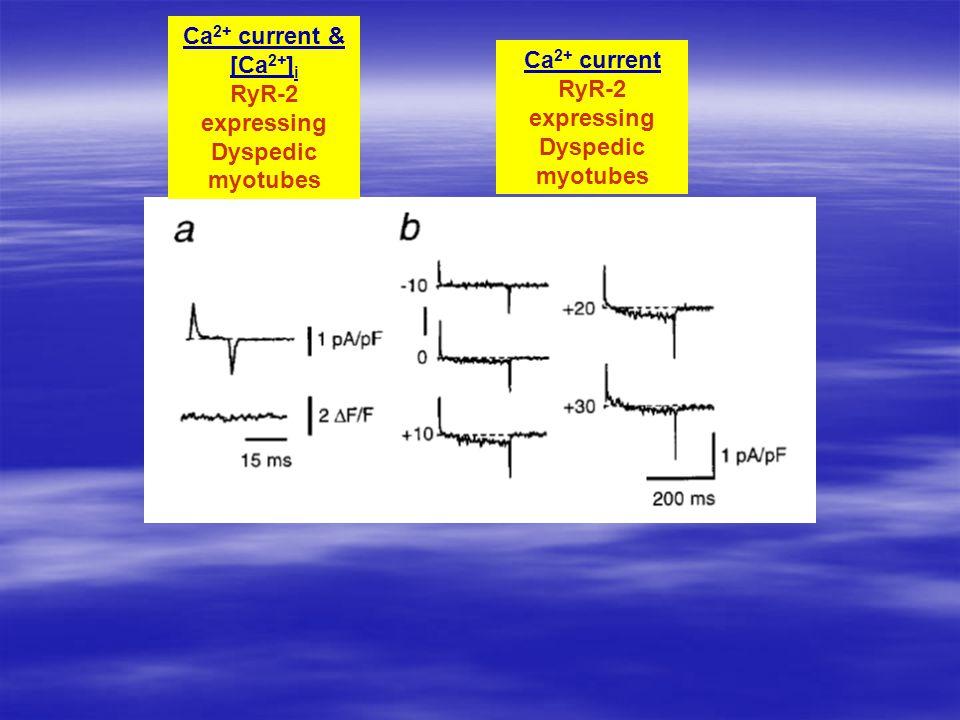 Ca 2+ current RyR-2 expressing Dyspedic myotubes Ca 2+ current & [Ca 2+ ] i RyR-2 expressing Dyspedic myotubes