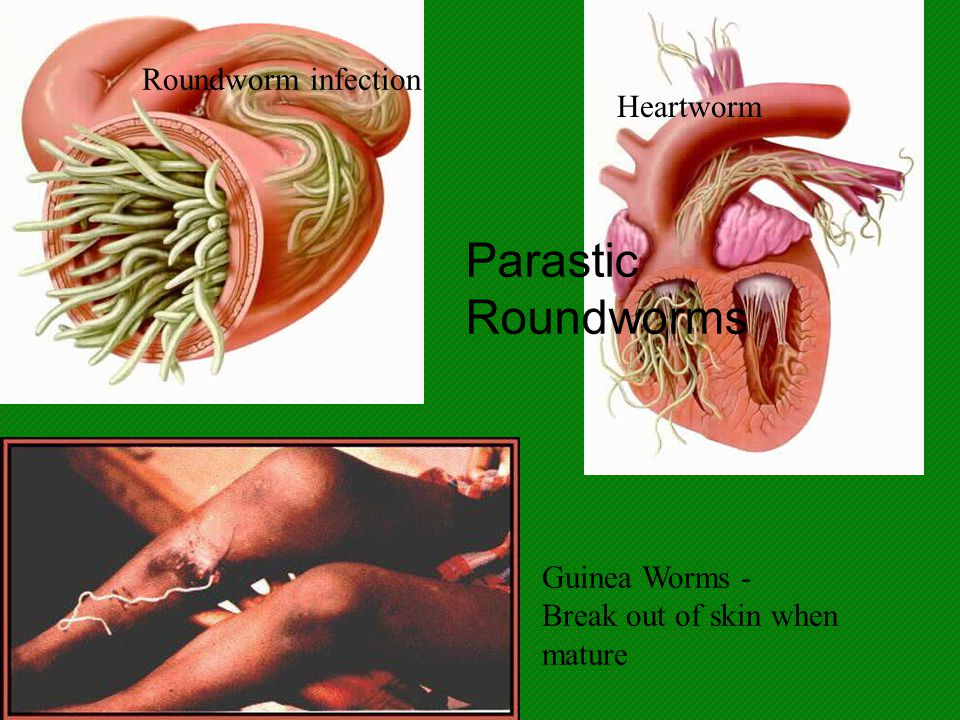 Roundworm infection Heartworm Guinea Worms - Break out of skin when mature Parastic Roundworms