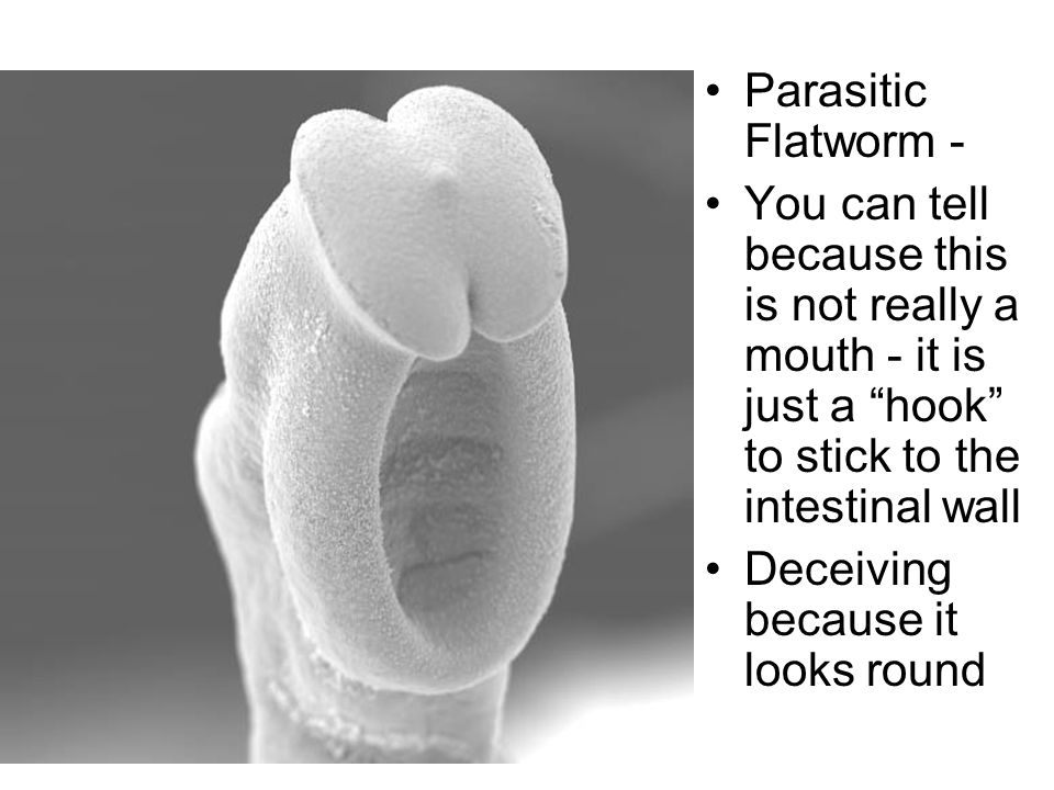 Parasitic Flatworm - You can tell because this is not really a mouth - it is just a hook to stick to the intestinal wall Deceiving because it looks round