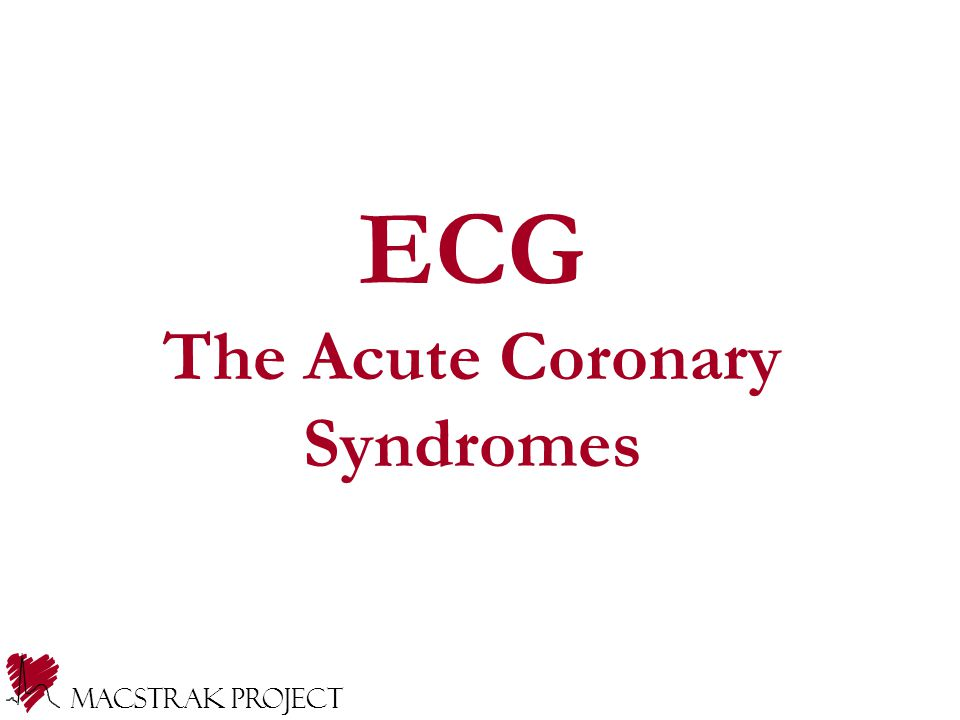 Macstrak Project Reviewing ECG for changes related to ACS ECGs evolve over time, during and after ACO ECG interpretation linked to management decisions Systematic approach to reading ECGs Principles discussed and examples of Macstrak ECG data capture ECG - Acute Coronary Syndromes