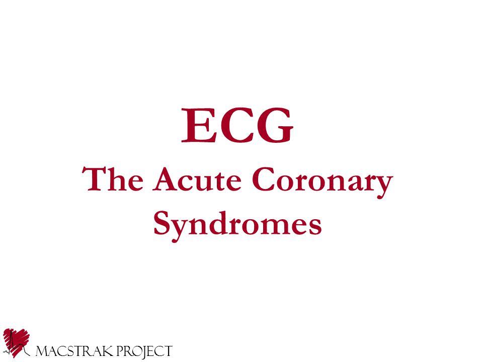 Macstrak Project ECG The Acute Coronary Syndromes
