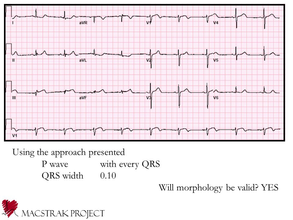 Macstrak Project Using the approach presented P wavewith every QRS QRS width0.10 Will morphology be valid? YES