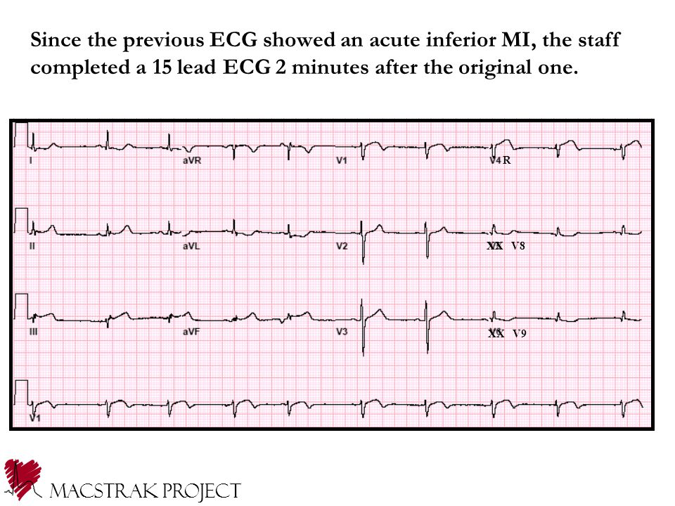 R XX V8 XX V9 Since the previous ECG showed an acute inferior MI, the staff completed a 15 lead ECG 2 minutes after the original one.