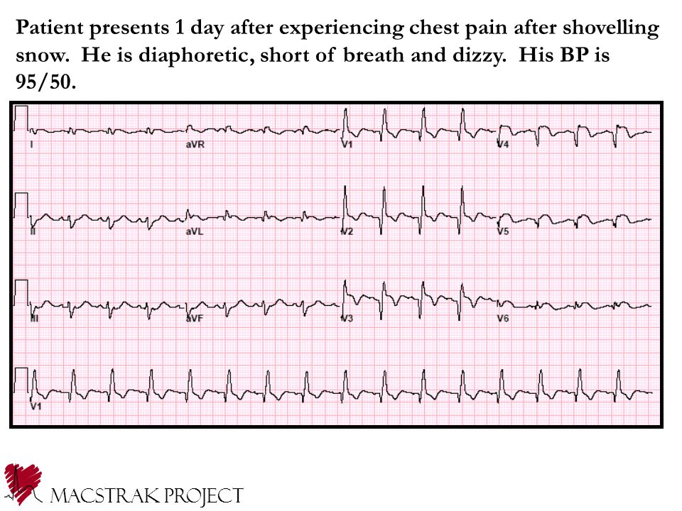 Macstrak Project Patient presents 1 day after experiencing chest pain after shovelling snow. He is diaphoretic, short of breath and dizzy. His BP is 9