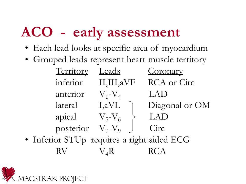 Macstrak Project Each lead looks at specific area of myocardium Grouped leads represent heart muscle territory TerritoryLeadsCoronary inferiorII,III,a