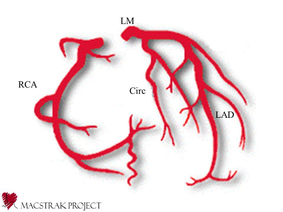 Macstrak Project RCA LAD Circ LM