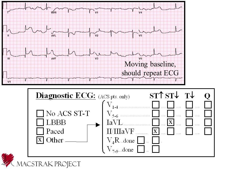 x x x Moving baseline, should repeat ECG