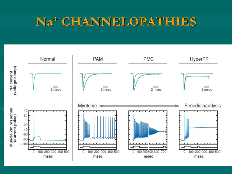 Na + CHANNELOPATHIES