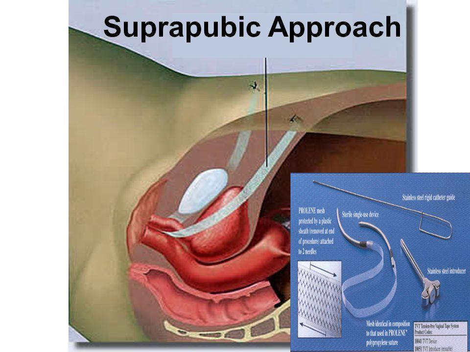 Suprapubic Approach