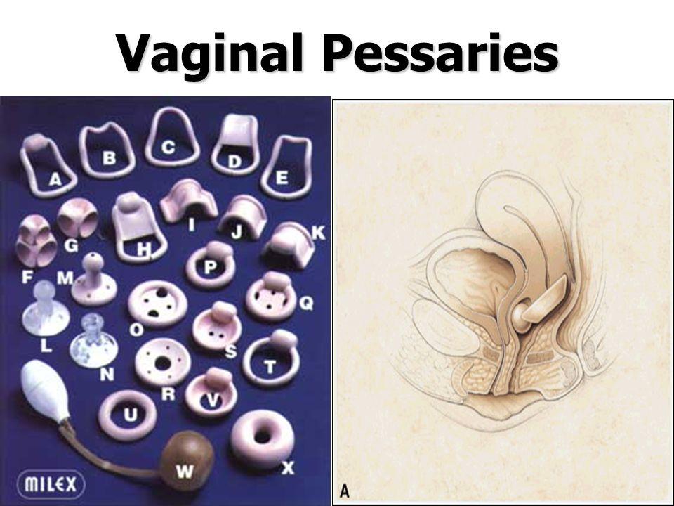 Vaginal Pessaries