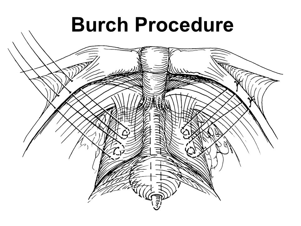 Burch Procedure