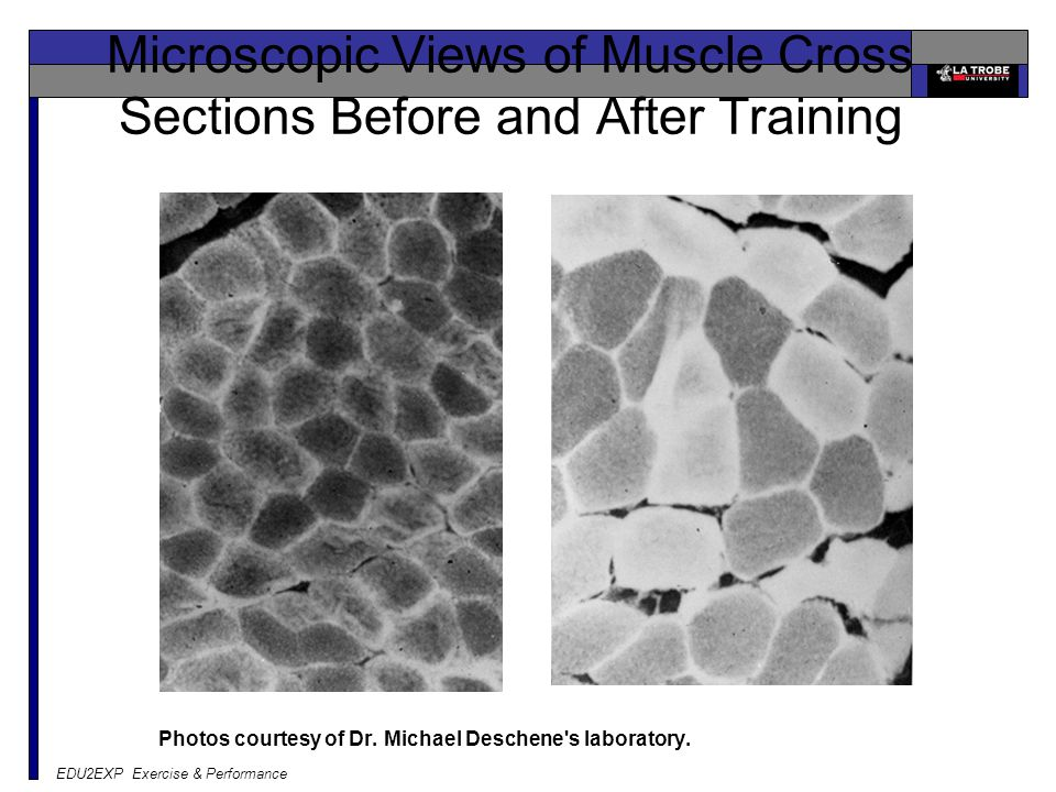 EDU2EXP Exercise & Performance Microscopic Views of Muscle Cross Sections Before and After Training Photos courtesy of Dr.