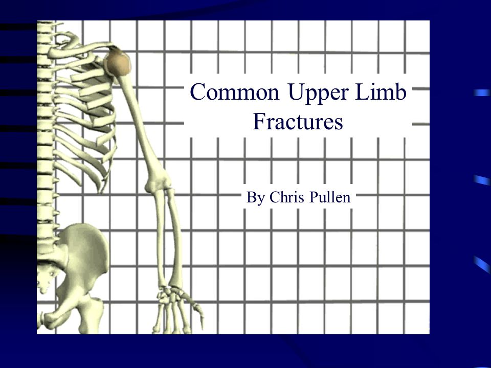By Chris Pullen Common Upper Limb Fractures