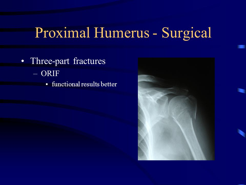 Proximal Humerus - Surgical Three-part fractures –ORIF functional results better