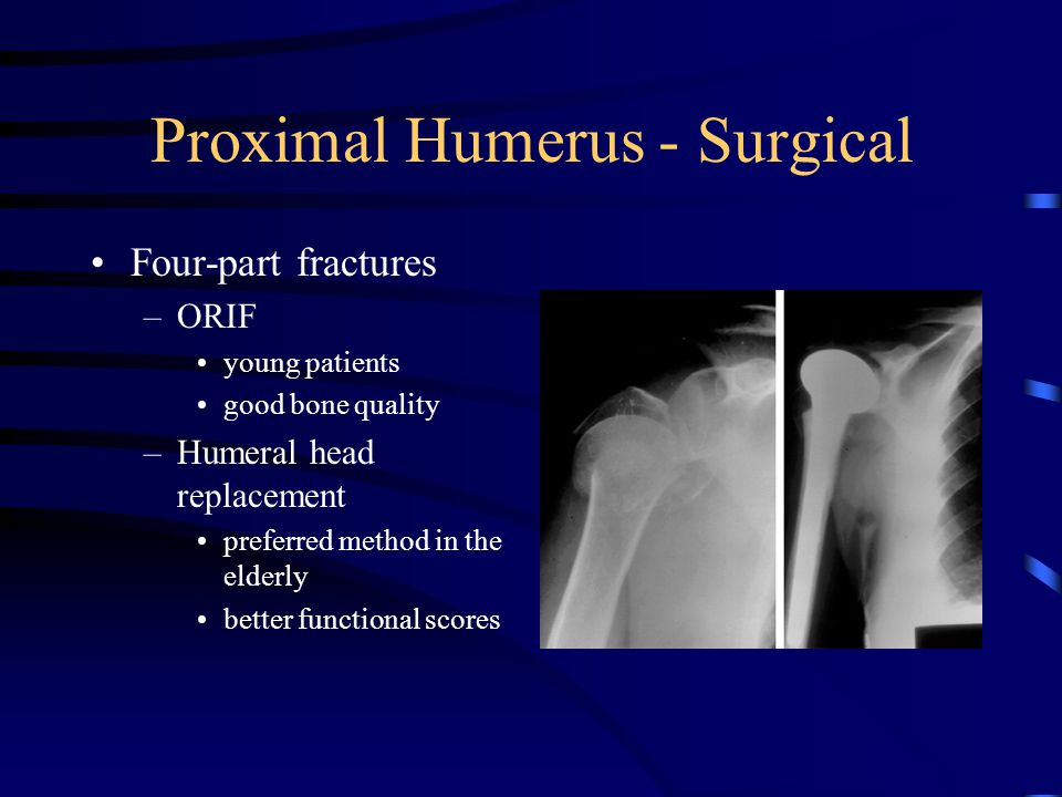 Proximal Humerus - Surgical Four-part fractures –ORIF young patients good bone quality –Humeral head replacement preferred method in the elderly bette