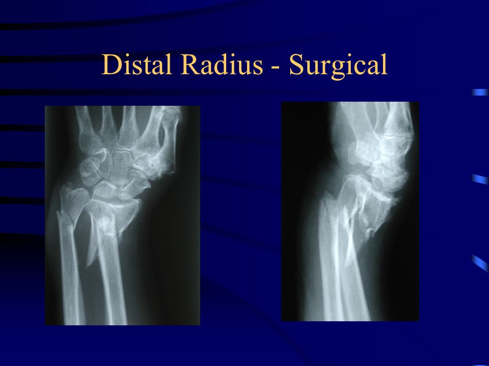 Distal Radius - Surgical