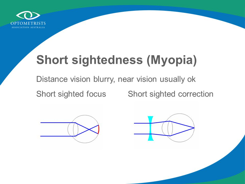 Short sightedness (Myopia) Distance vision blurry, near vision usually ok Short sighted focus Short sighted correction