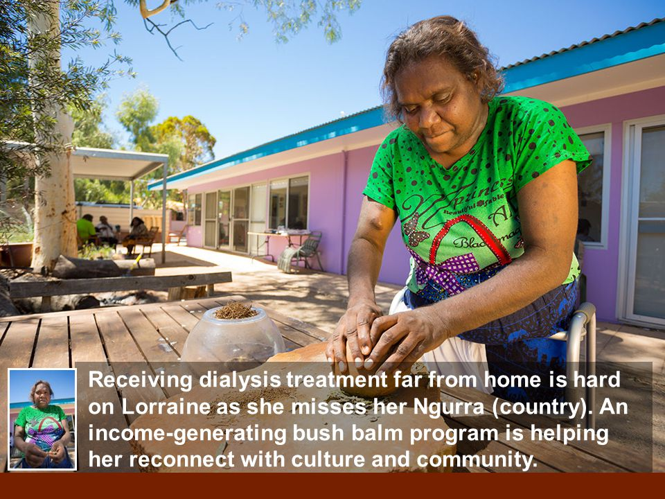 Receiving dialysis treatment far from home is hard on Lorraine as she misses her Ngurra (country). An income-generating bush balm program is helping h