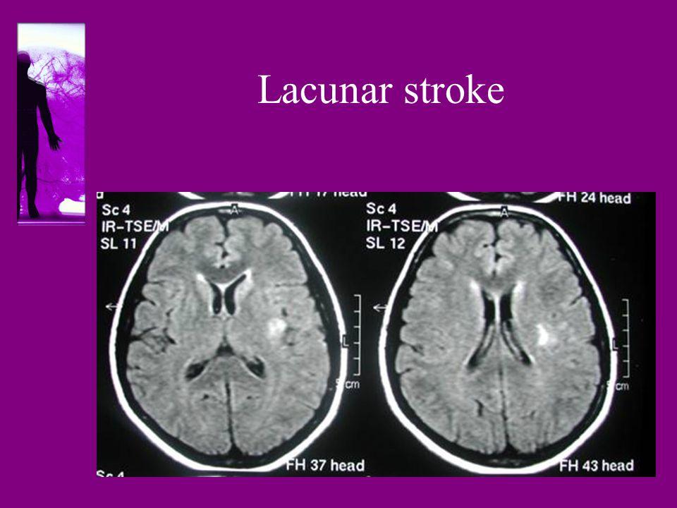 Lacunar stroke