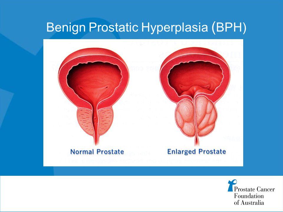 Benign Prostatic Hyperplasia ( BPH)