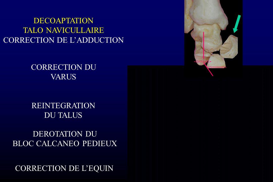 DECOAPTATION TALO NAVICULLAIRE CORRECTION DE L'ADDUCTION CORRECTION DU VARUS REINTEGRATION DU TALUS DEROTATION DU BLOC CALCANEO PEDIEUX CORRECTION DE