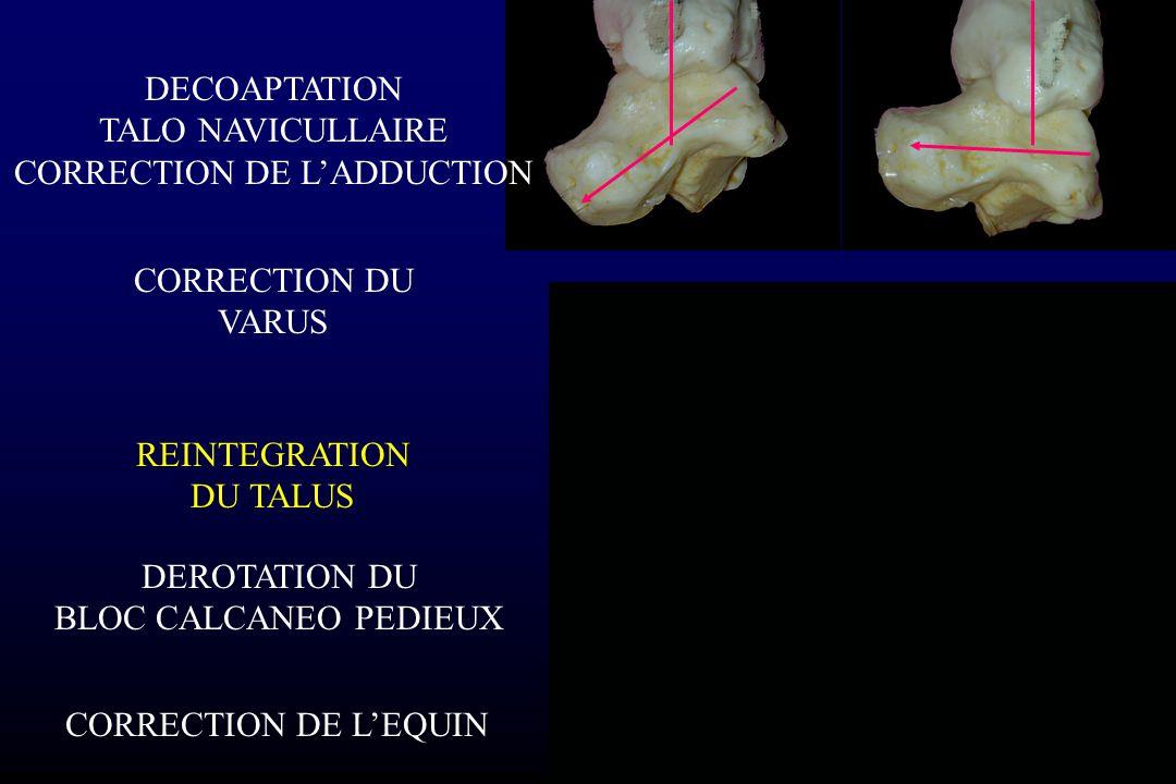CORRECTION DU VARUS REINTEGRATION DU TALUS DEROTATION DU BLOC CALCANEO PEDIEUX CORRECTION DE L'EQUIN DECOAPTATION TALO NAVICULLAIRE CORRECTION DE L'AD