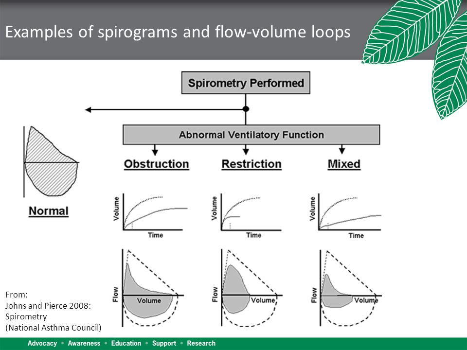 Examples of spirograms and flow-volume loops From: Johns and Pierce 2008: Spirometry (National Asthma Council)