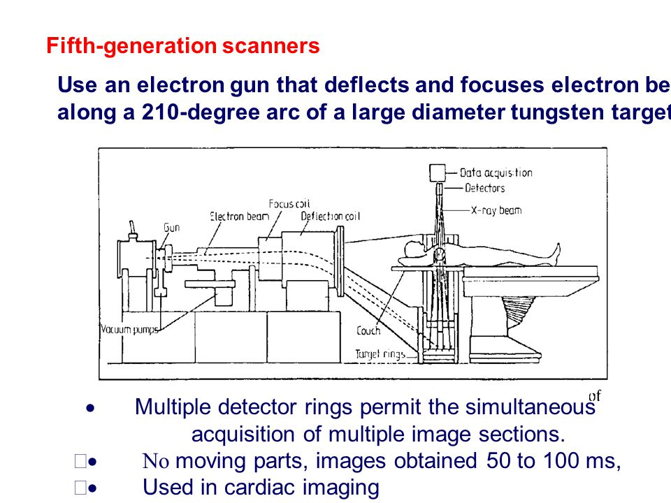 Fifth ‑ generation scanners Use an electron gun that deflects and focuses electron beam along a 210 ‑ degree arc of a large diameter tungsten target r
