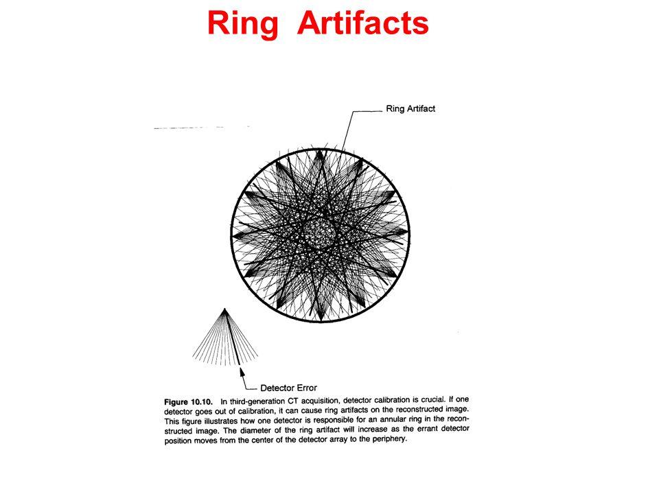 Ring Artifacts