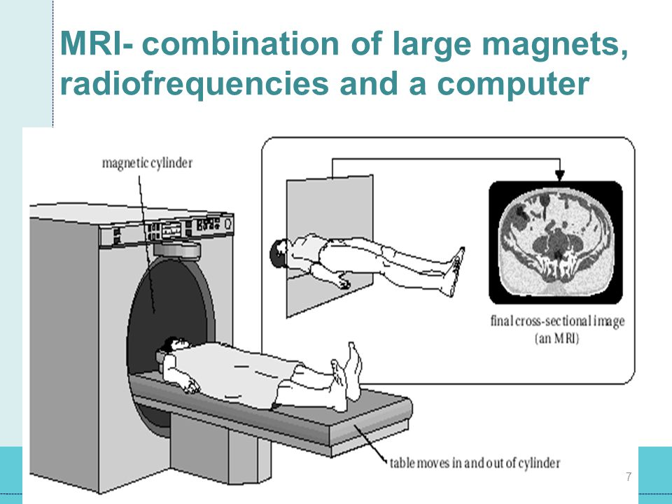 MRI- combination of large magnets, radiofrequencies and a computer 7