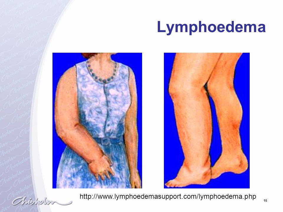 15 Lymphoedema http://www.lymphoedemasupport.com/lymphoedema.php