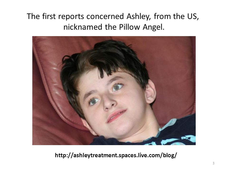 3 http://ashleytreatment.spaces.live.com/blog/ The first reports concerned Ashley, from the US, nicknamed the Pillow Angel.