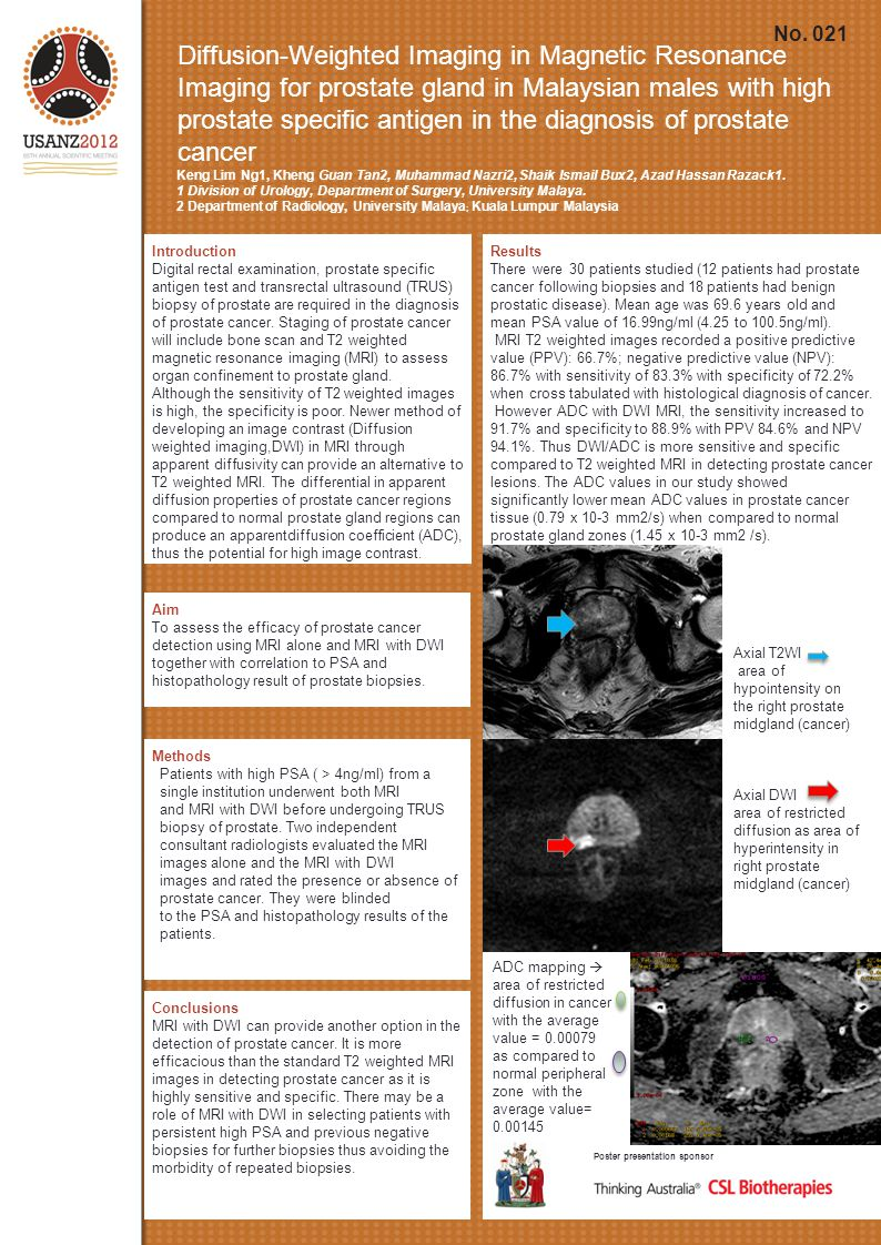 Diffusion-Weighted Imaging in Magnetic Resonance Imaging for prostate gland in Malaysian males with high prostate specific antigen in the diagnosis of