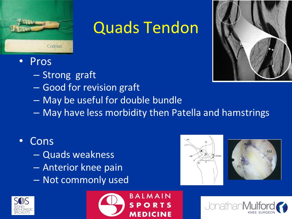 Quads Tendon Pros – Strong graft – Good for revision graft – May be useful for double bundle – May have less morbidity then Patella and hamstrings Con