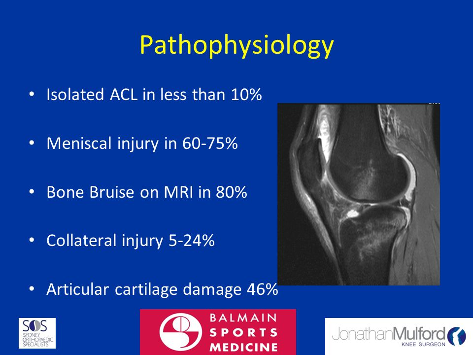 Pathophysiology Isolated ACL in less than 10% Meniscal injury in 60-75% Bone Bruise on MRI in 80% Collateral injury 5-24% Articular cartilage damage 4