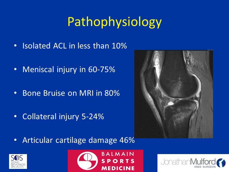 Diagnosis History Examination – Lachman 85% sensitive, 94% specific – Pivot 24% sensitive, 98% Specific MRI – Sens 86% specific 95%