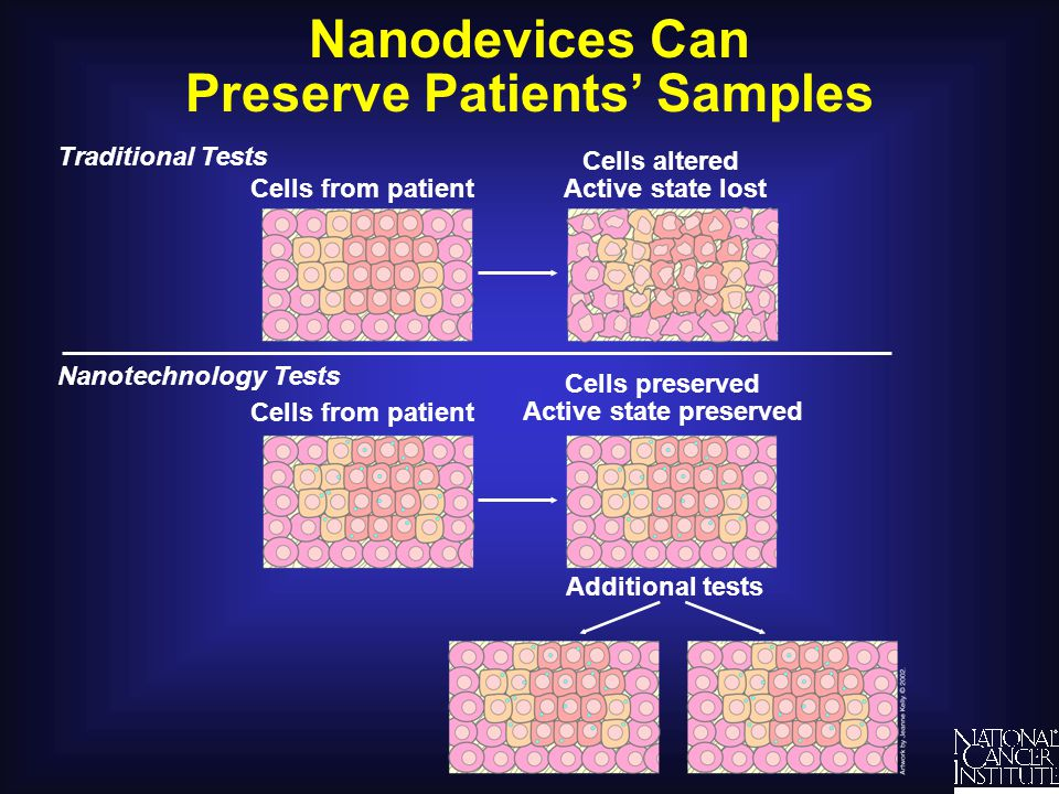Nanodevices as a Link Between Detection, Diagnosis, and Treatment Nanodevice Reporting TargetingDetection Imaging Nanotechnology Cancer Treatment Cancer cell Traditional Cancer Treatment Cancer cell Drug