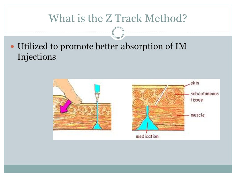What is the Z Track Method Utilized to promote better absorption of IM Injections