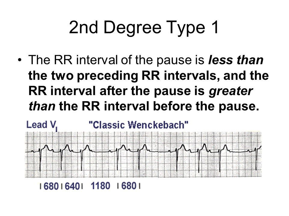 2nd Degree Type 1 The RR interval of the pause is less than the two preceding RR intervals, and the RR interval after the pause is greater than the RR interval before the pause.