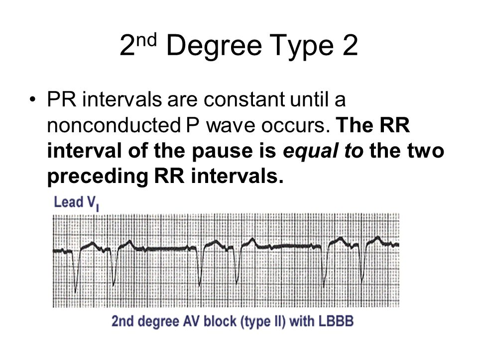 2 nd Degree Type 2 PR intervals are constant until a nonconducted P wave occurs. The RR interval of the pause is equal to the two preceding RR interva