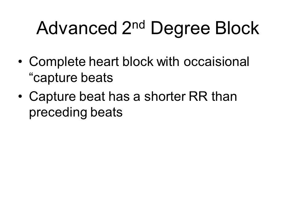 Advanced 2 nd Degree Block Complete heart block with occaisional capture beats Capture beat has a shorter RR than preceding beats
