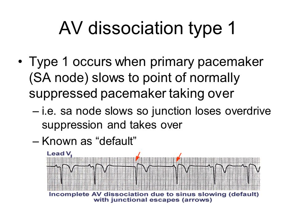 AV dissociation type 1 Type 1 occurs when primary pacemaker (SA node) slows to point of normally suppressed pacemaker taking over –i.e.