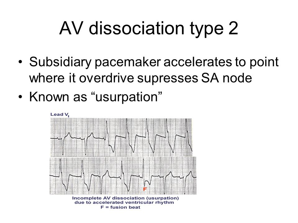 """AV dissociation type 2 Subsidiary pacemaker accelerates to point where it overdrive supresses SA node Known as """"usurpation"""""""