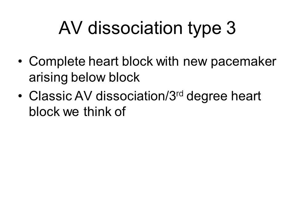 AV dissociation type 3 Complete heart block with new pacemaker arising below block Classic AV dissociation/3 rd degree heart block we think of