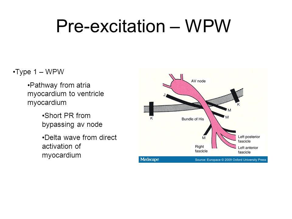Pre-excitation – WPW Type 1 – WPW Pathway from atria myocardium to ventricle myocardium Short PR from bypassing av node Delta wave from direct activation of myocardium