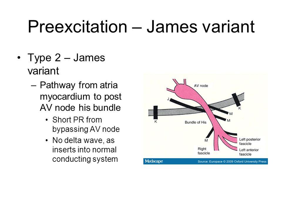 Preexcitation – James variant Type 2 – James variant –Pathway from atria myocardium to post AV node his bundle Short PR from bypassing AV node No delta wave, as inserts into normal conducting system
