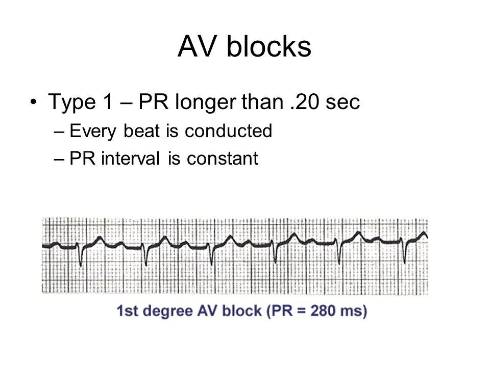 AV blocks Type 1 – PR longer than.20 sec –Every beat is conducted –PR interval is constant