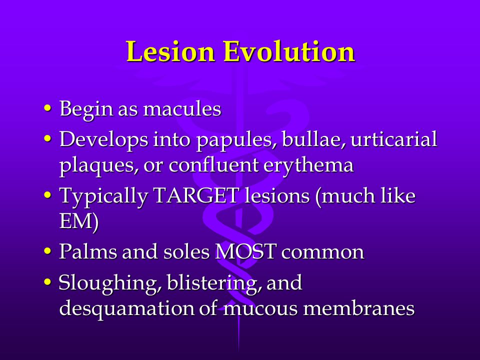 Lesion Evolution Begin as maculesBegin as macules Develops into papules, bullae, urticarial plaques, or confluent erythemaDevelops into papules, bullae, urticarial plaques, or confluent erythema Typically TARGET lesions (much like EM)Typically TARGET lesions (much like EM) Palms and soles MOST commonPalms and soles MOST common Sloughing, blistering, and desquamation of mucous membranesSloughing, blistering, and desquamation of mucous membranes