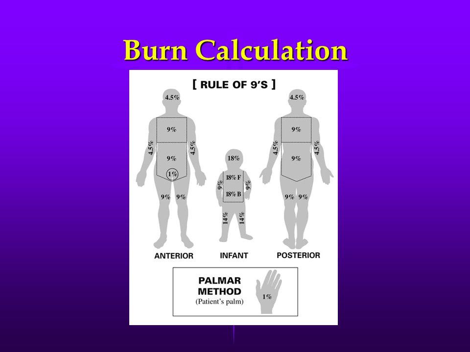 Burn Calculation