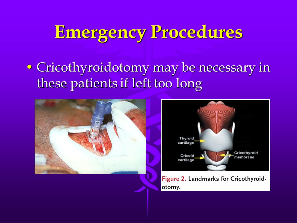 Emergency Procedures Cricothyroidotomy may be necessary in these patients if left too longCricothyroidotomy may be necessary in these patients if left too long